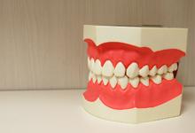 フィットしていない入れ歯
