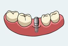 失った歯を補うインプラント