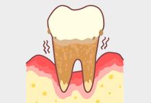 とても怖い歯周病